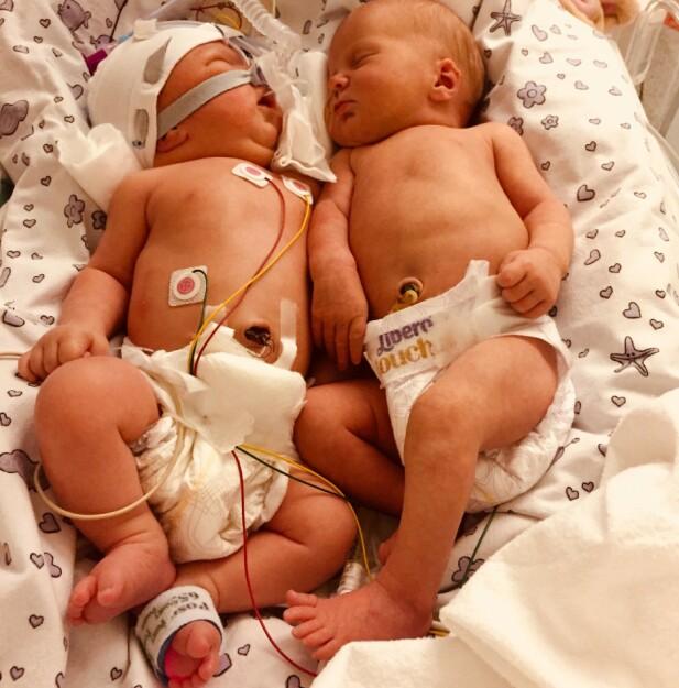 SØSKEN: Lykke til venstre med maske, og Laura ved siden av. To søstre med ett minutts mellomrom, omtrent en uke etter fødselen. FOTO: Privat