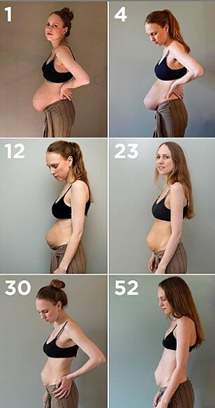 UTVIKLING: På Instagram har Maria delt bilder av magen etter fødselen. FOTO: @triplets_of_copenhagen