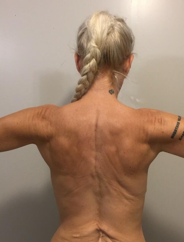 RYGGMARGSBROKK: Malinhar ryggmargsbrokk og har hatt mange operasjoner. FOTO: Privat