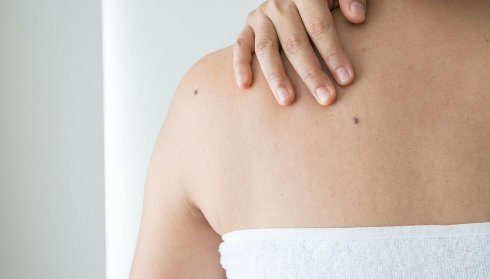 HUDFORANDRINGER: Å oppdage en forandring i huden kan være litt skummelt, men som regel er det ikke noe farlig. FOTO: NTB Scanpix