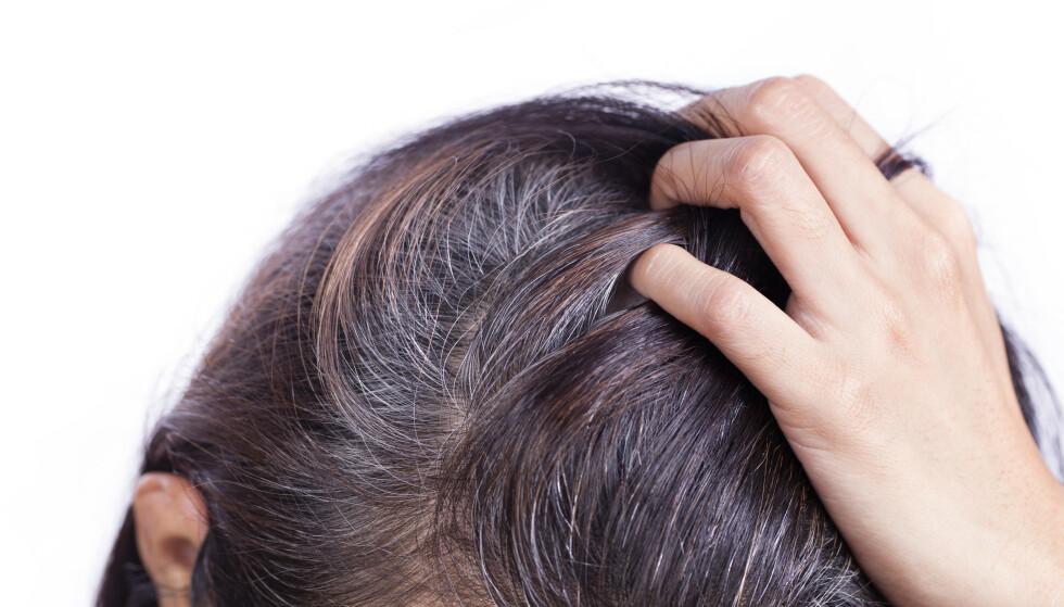 PERMANENT SKADE: Når du først har fått grå hår, er det ikke noe du kan gjøre for å fikse skaden. NTB Scanpix