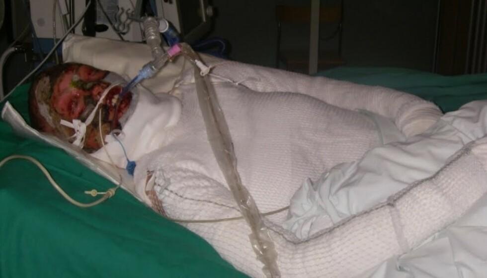 MISTET HUD OVER HELE KROPPEN: Ingenting kunne forberede Elises foreldre på synet av datteren i sykesengen. FOTO: Privat