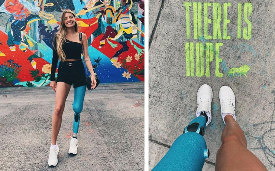 PAOLA ANTONINI: Den 27 år gamle modellens liv ble drastisk forandret da hun for seks år siden ble påkjørt av en beruset sjåfør. Likevel har hun bevart både smilet og positiviteten og ønsker å inspirere andre. Foto: Skjermdump fra Instagram @paola_antonini