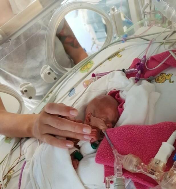 HELEN: Lille Helén inne i kuvøsen sin. Det var sårt for foreldrene å se henne slik. FOTO: Privat
