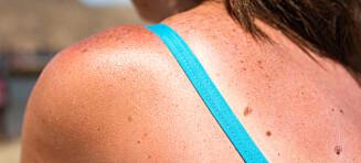 Barberskum på solbrent hud - funker det?