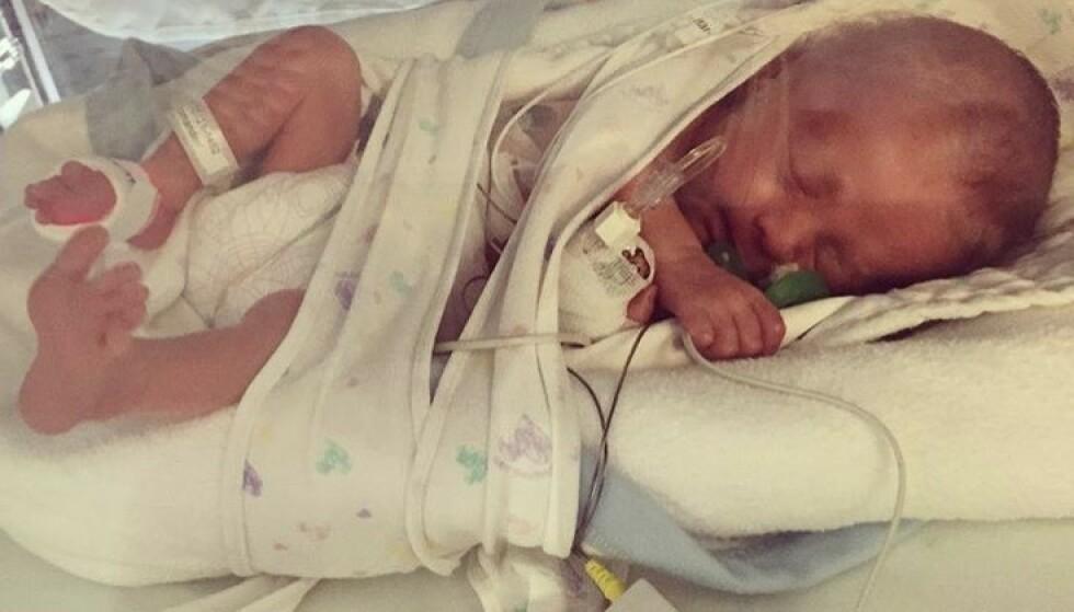 LITEN KJEMPE: Ti dager etter fødselen kom de første symptomene på at Elton var smittet av herpessvirus. FOTO: Privat