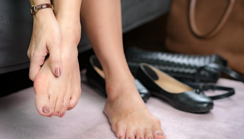 SMERTEFULLT: Hallux valgus kan beskrives som smerter i stortåleddet og en stortå som peker innover. FOTO: NTB