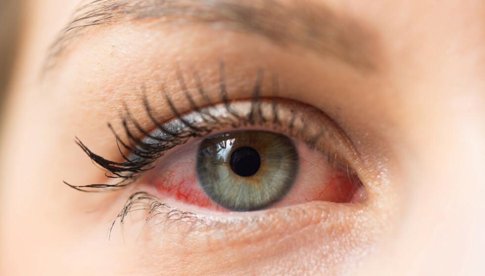 IRRITERE: En gammel mascara kan irritere øyet FOTO; NTB