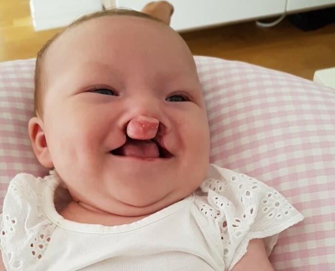 DOBBELTSIDIG LEPPE-KJEVE-GANESPALTE: Oline hadde en mer omfattende spalte enn storesøsteren og har to år gammel allerede vært gjennom flere operasjoner. FOTO: Privat