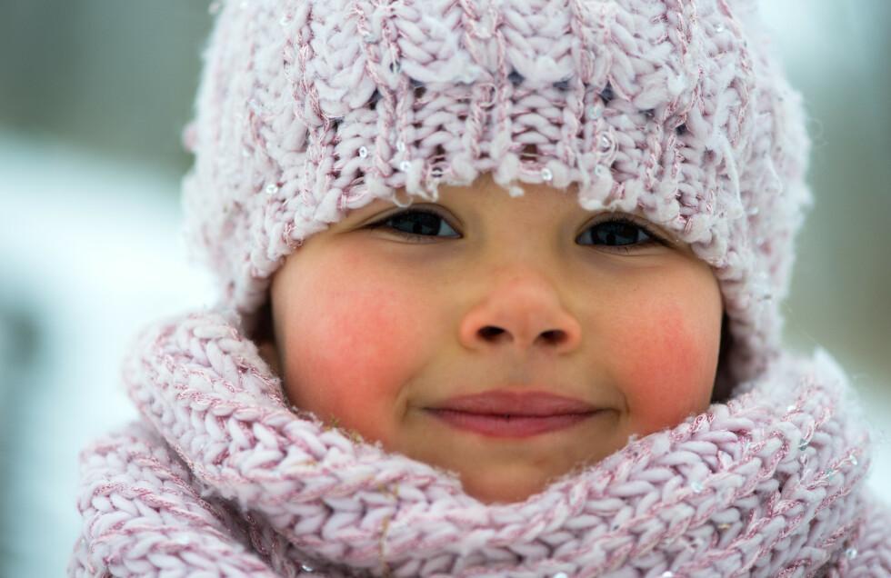BESKYTT BARNETS HUD: Minusgrader og tørrere luft tørker ut huden, noe som kan føre til hudproblemer. FOTO: NTB Scanpix