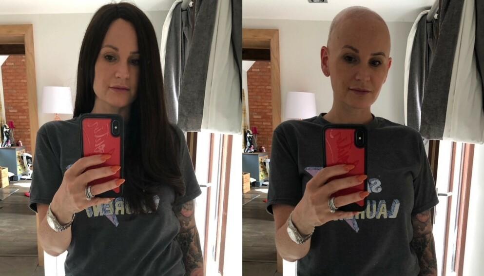 ALOPECIA AREATA: Victoria Morgan (avbildet) mistet håret sitt for to år siden. Foto: Privat
