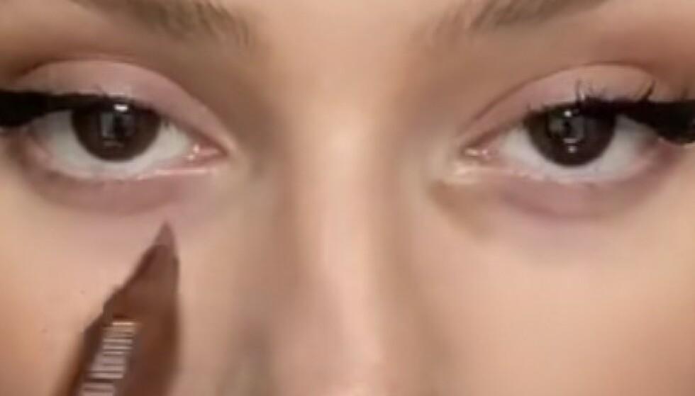 Poser under øynene har blitt trendy