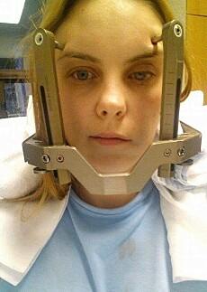 HASTEOPERASJON: Austėja i desember 2015. Planen var at hun skulle få gammaknivbehandling, men den ble avlyst ettersom svulsten i hodet hadde vokst. Dagen etter ble hun hasteoperert. FOTO: Privat