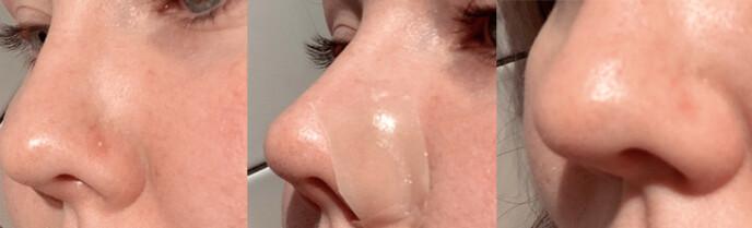 KK tester: gnagsårplaster på kviser