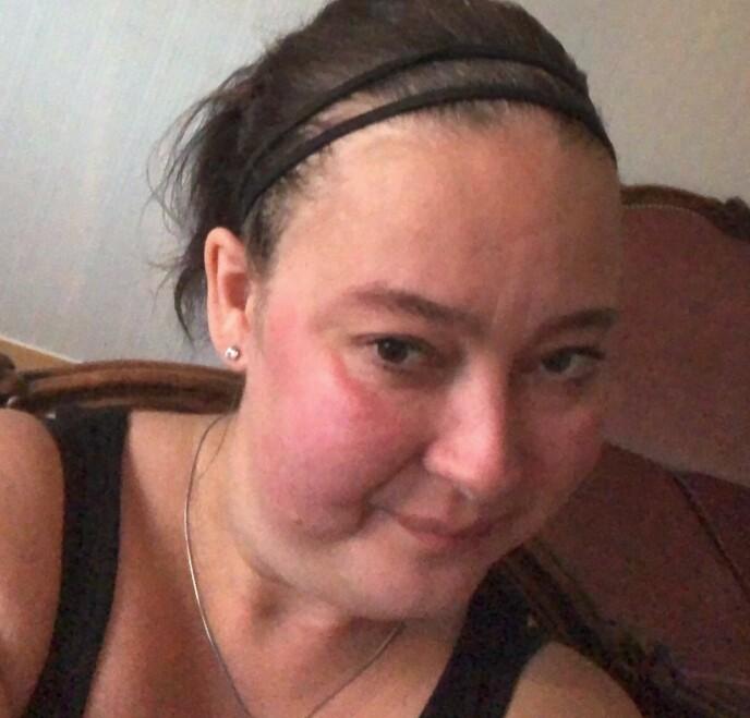 FORANDRET UTSEENDET: Etter store doser med prednisolon kunne Ann-Monica nesten ikke kjenne igjen sitt eget ansikt. Hun gikk opp 18 kg på kort tid, og sleit lenge med å bli vant til sitt nye utseende. FOTO: Privat