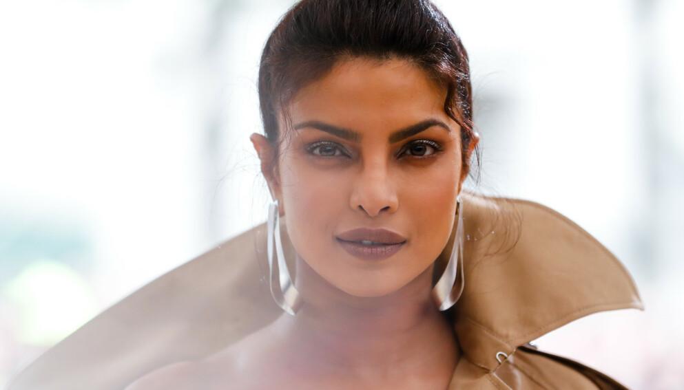 PRIYANKA CHOPRA: Den indiske skuespilleren fikk beskjed om at veien til suksess ville bli vanskelig dersom hun ikke opererte seg. Foto: NTB