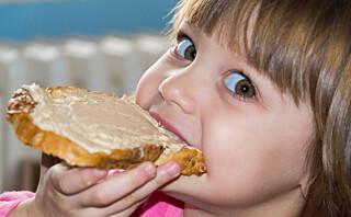 Slik unngår du at barna får i seg for mye A-vitamin