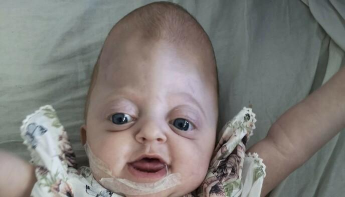 BLID UNGE: Maylie utvikler seg akkurat som andre babyer på hennes alder, forteller mamma Ida. Foto: Petra Älvstrand