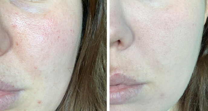 FØR OG ETTER: Bildet til venstre viser huden min før jeg tok på produktet. Ja, det dekker ganske godt og etterlater et nokså naturlig resultat, men det føles dessverre ikke så bra som jeg hadde ønsket. Foto: Malin Gaden
