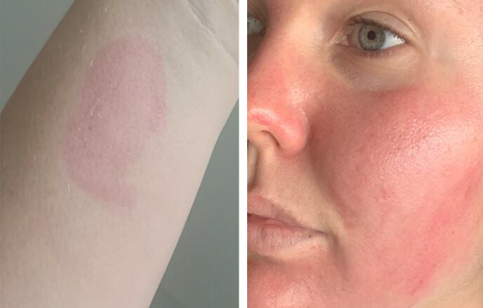 TEST: Jeg testet produktet på armen først for å se om jeg tålte det. Det gjorde jeg, så da påførte jeg i ansiktet. Husk å ikke la produktet ligge på mer enn ti minutter og kun en til to ganger i uka. Foto: Malin Gaden