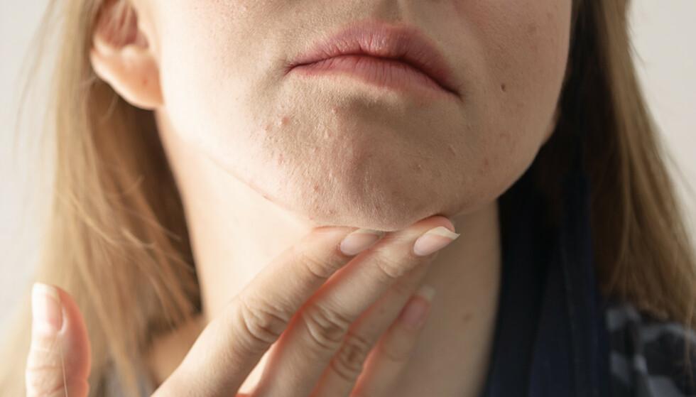 VOKSEN-KVISER: Undersøkelser viser at voksen-kviser oppstår hos 25 prosent av voksne menn og 50 prosent av voksne kvinner på et eller annet tidspunkt. FOTO: NTB