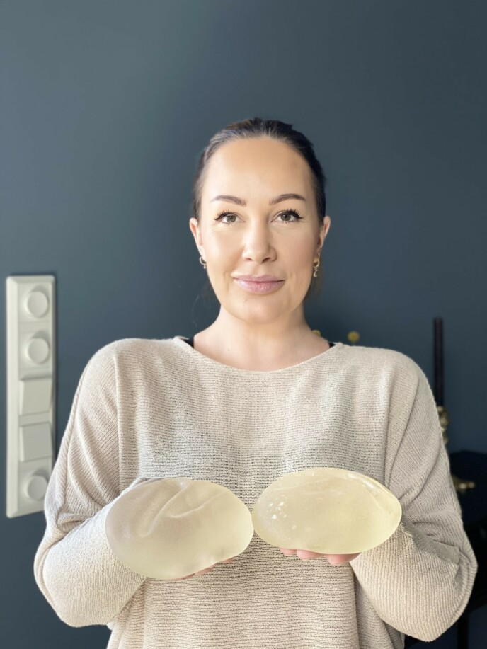 UT AV KROPPEN: Cecilie viser fram implantatene hun hadde i brystene. FOTO: Privat