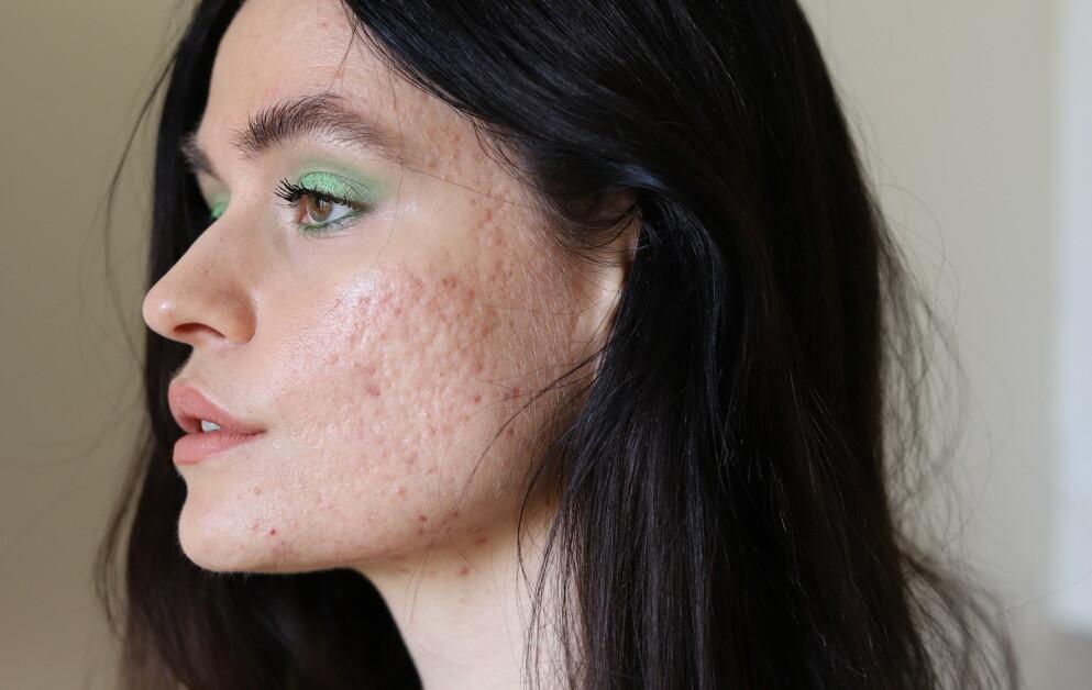 SKIN POSITIVITY: Sofia er en del av «skin positivity» bevegelsen, som deler ufiltrerte bilder av problemhud på Instagram. FOTO: Privat