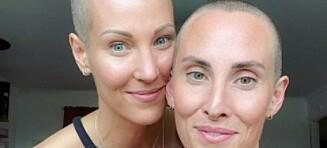 Kreftsyke Elin (32) barberte vekk håret - det samme gjorde tvillingsøsteren
