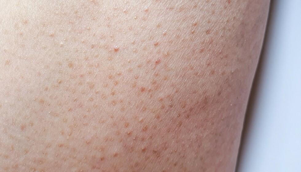 KERATOSIS PILARIS: En tilstand som gir nupper i huden, ofte på overarmene. FOTO: NTB