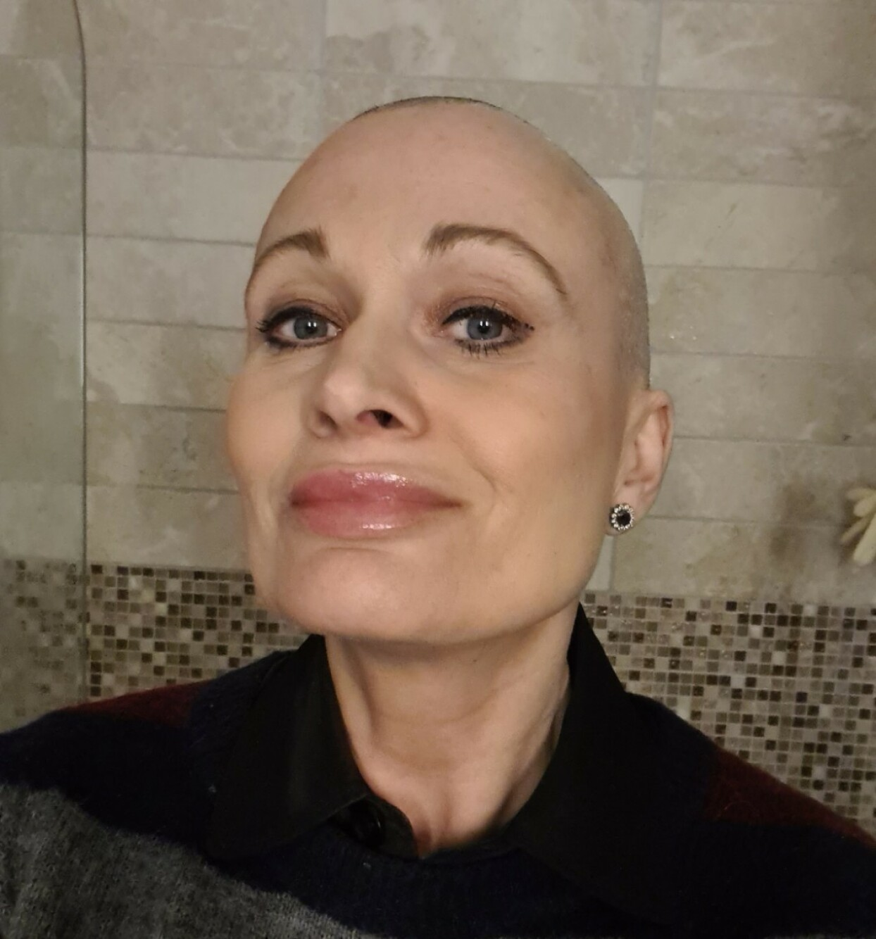 MISTET HÅRET: Bildet ble tatt dagen Kristine barberte bort håret som var i ferd med å falle av. Foto: Privat
