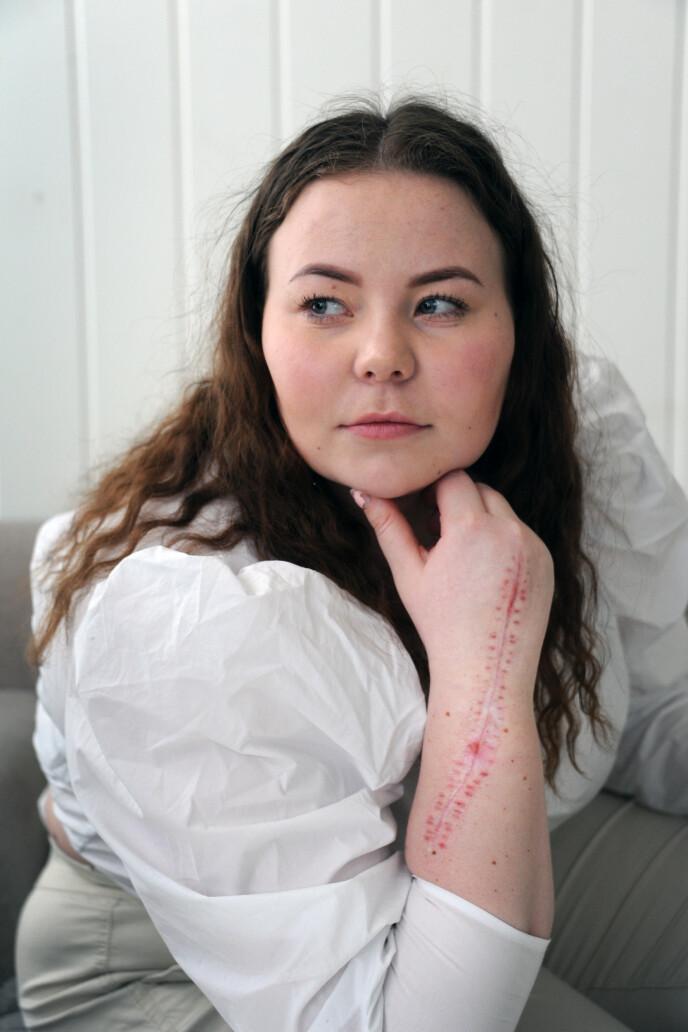 TABU: Det er fremdeles litt tabu å spørre, for eksempel om hvorfor jeg har et 20 centimeter langt arr på underarmen. FOTO: Marianne Otterdahl-Jensen