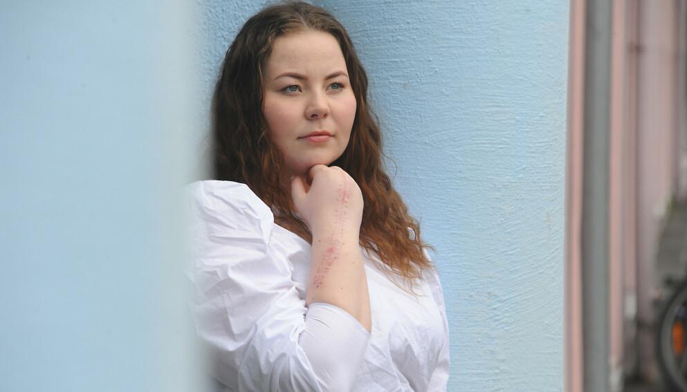 KREFT: Thea hadde en såkalt kjempecelletumor i handleddet - og har operert flere ganger. FOTO: Marianne Otterdahl-Jensen