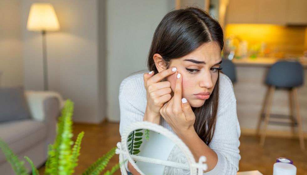 SJENERENDE KVISER: Røde og vonde kviser kan være både ubehagelig og irriterende, men det finnes heldigvis råd for å bli kvitt dem.
