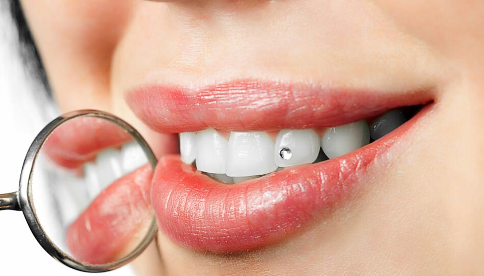 TREND: Tannsmykker trender, men tannlege advarer om riktig bruk. FOTO: NTB