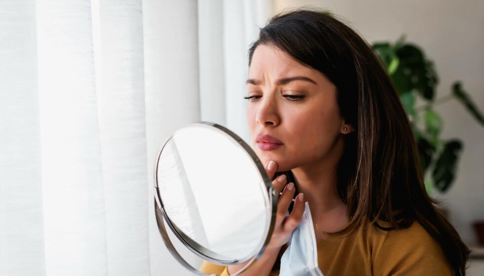 MASKNE: Sliter du med uren hud på grunn av munnbindbruk? FOTO: NTB