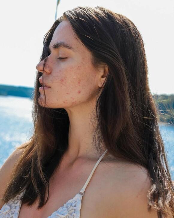 AKNE: Den svenske influenceren Sofia Grahn deler åpent og ærlig med sine nesten 100 000 følgere på Instagram. FOTO: ISOFIAGRAHN
