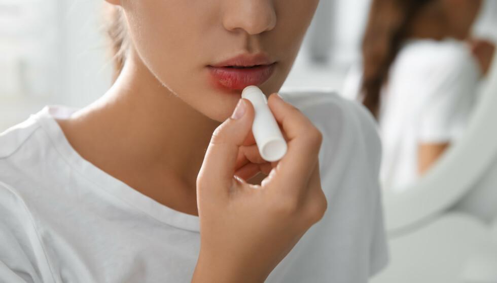 SÅR SOM IKKE GROR: Har du et munnsår som ikke gror? Da bør du ta det på alvor, det kan nemlig være et tegn på munnkreft. FOTO: NTB