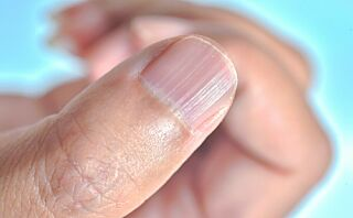 Dette kan neglene fortelle om helsen din