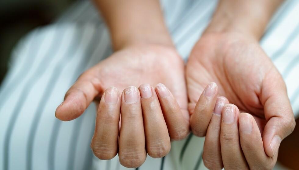 SPRØ NEGLER: Vitamin- og mineralmangler, ytre skader og ulike sykdommer er noen mulige årsaker til flisete og sprø negler. FOTO: NTB